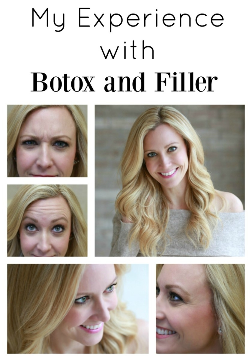 My Experience With Botox and Fillers