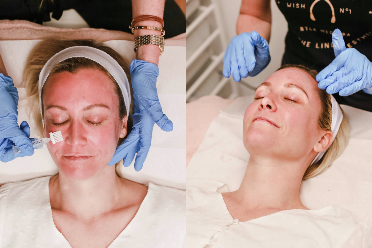 chemical peel | Fall Beauty: Glytone M&M Facial featured by top Houston beauty blog Haute & Humid